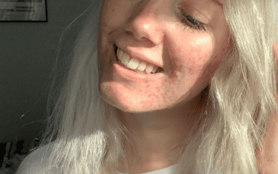 Different Types of Acne – Explained