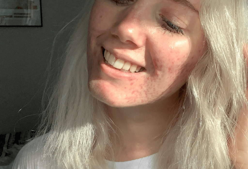Kara Eden of Manchester UK with acne on her cheeks using Zilch Acne Formula